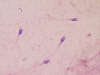 spermatozoides au microscope