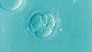 cellules vues au microscope