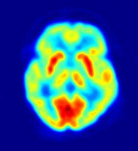 image de cerveau obtenue avec la technique de tomograpahie